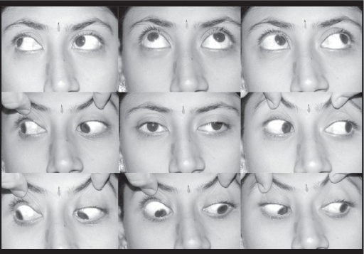 Large angle exotropia with left eye superior obliqueoveraction and an A pattern