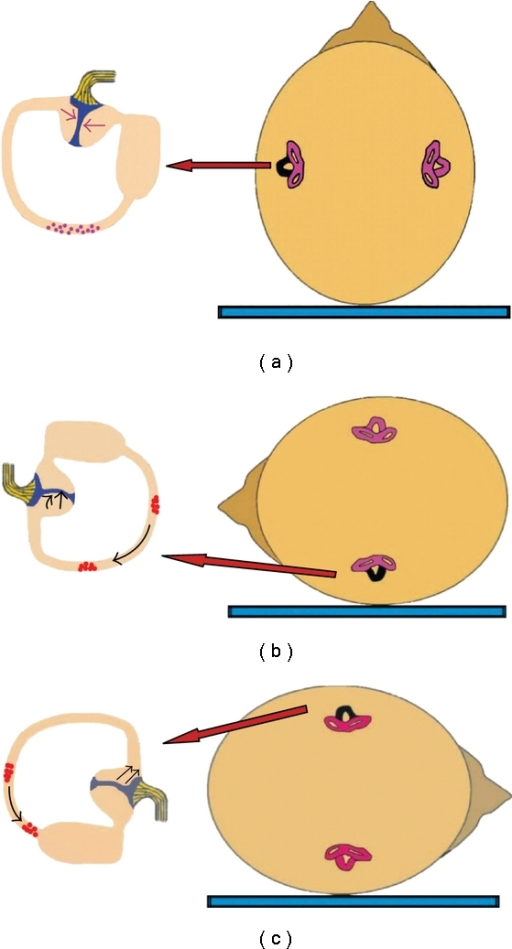 Mechanism of canalolithiasis of BPPV of the horizontal semicircular canal, when the left ear is affected (the involved left horizontal canal is colored black). (a) Patient in supine position with debris in the posterior part of the left horizontal canal. (b) When rotating the head towards the affected side, particles move towards the ampulla, producing an ampullopetal flow and triggering intense geotropic horizontal nystagmus. (c) When rotating the head towards the healthy side, particles fall in the opposite direction, causing an ampullofugal flow and triggering nystagmus beating again towards the ground, but less intense.