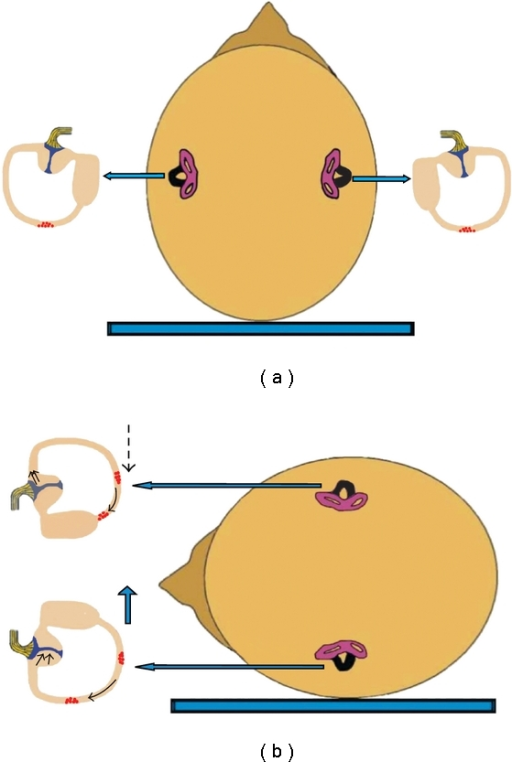 Mechanism of canalolithiasis of bilateral geotropic horizontal canal BPPV (the involved horizontal canal sare colored black). (a) Patient in supine position with debris in the posterior part of both horizontal canals. (b) Supine roll test on either side would result in excitation of the horizontal canal of the lowermost ear, due to ampullopetal endolymph flow and at the same time inhibition of the horizontal canal of the uppermost ear, due to ampullofugal endolymph flow. Vectorial summation would result in an intense, symmetric geotropic nystagmus.