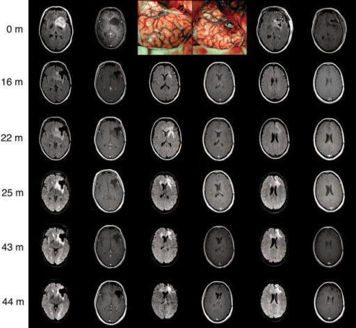 Rapid transformation from a WHO grade II oligodendroglioma at the time of surgery into an anaplastic oligodendroglioma at 22 months
