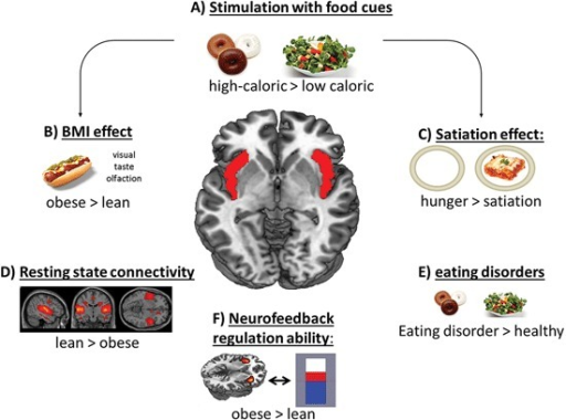 Scheme of the contribution of the insular cortex in food-related processes. Especially the anterior and mid-dorsal part of the insular cortex respond to (A) high-caloric food cues and show (B) increased activation in obese subjects and (C) in a hungry condition after stimulation with food items. (D) Lean subjects showed higher resting state connectivity pattern in the salience network, including the insular cortex. (E) Also patients suffering from an eating disorder show enhanced activation in this region. (F) Obese subjects' regulation ability during an fMRI based neurofeedback paradigm is higher compared to lean subjects.