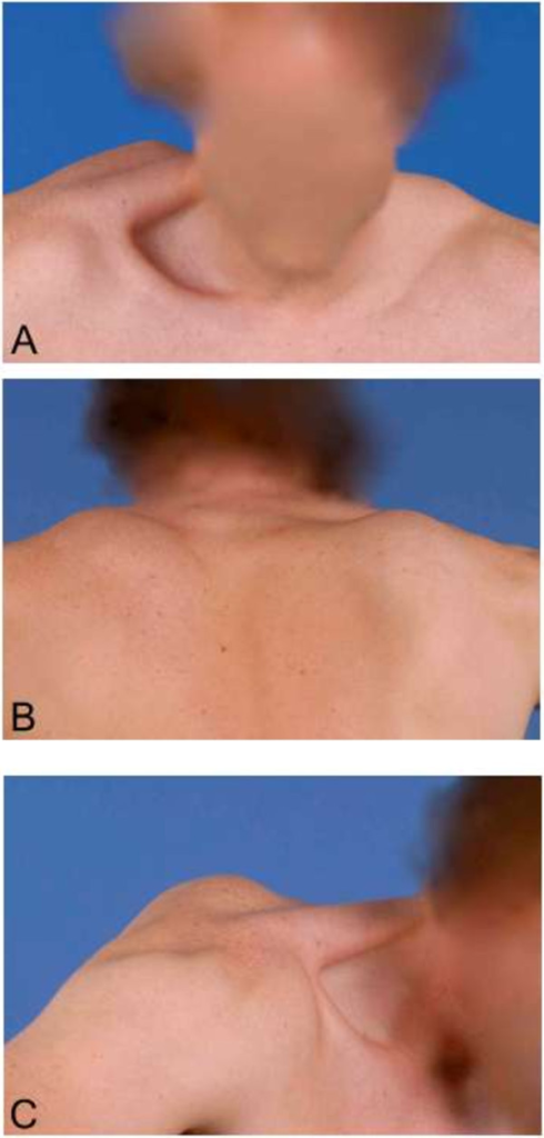 Clinical presentation at first consultation. A, B &C. Scapular winging in frontal, dorsal and sagittal plane. Photographs were taken at the time of presentation.