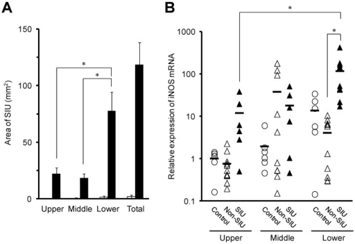 Area of SIUs (A), and intestinal iNOS mRNA expression (B) in rats with INM-induced SIUs. Animals were sacrificed 24 h after INM or vehicle administration. (A) Areas of SIU were microscopically assessed in control (open columns) and INM-treated rats (closed columns). The data are presented as the mean ± standard error for 5 to 6 rats per group. (B) Total RNA was extracted from the small intestine. The expression level of iNOS mRNA was determined by real-time PCR, as described in the Materials and Methods. The data for mRNA expression are expressed as the ratio of the mean value for iNOS mRNA in the upper intestine of the control group. Points represent individual data for control (open circles), non-SIU (open triangles), and SIU (closed triangles) groups, and bars represent the mean value for 6 to 11 rats per group. *P < 0.05, statistically significant.