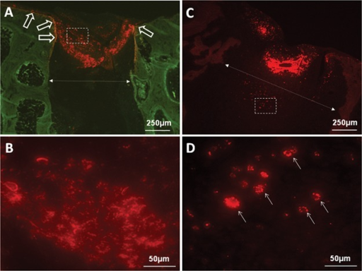 Dynamic distribution of chitosan particles during articular cartilage regeneration in microdrilled cartilage defects, in unstained plastic sections. The red fluorescent signal shows RITC-chitosan, and the green (A) is autofluorescent bone. After 1 week of repair, chitosan particles resided at the top of drill holes (A) as an extracellular scaffold dispersed within the fibrin clot (B). Some chitosan adhered to the bone lining the drill hole side walls and the base of the defect (A, open arrows). At 2 weeks of repair, little or no extracellular chitosan remained (C), and most chitosan particles were internalized in vesicles of granulation tissue cells (D). The dotted arrows (in A and C) show the increased width of the treated drill hole at 2 weeks.