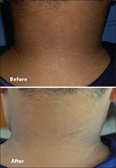 Comparative photograph between application of topical 0.1% adapalene and placebo at week 4. The photograph shows an improvement in the neck darkening and skin thickening
