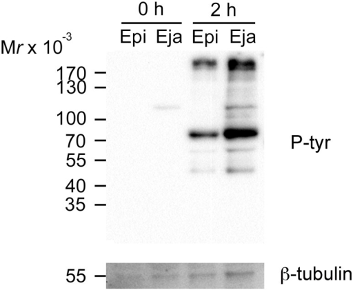 Western blot analysis of sperm protein tyrosine phosphorylation.Ejaculated and epididymal sperm samples were collected at the beginning (0 h) and after 2 h of incubation under capacitating conditions. Protein lysates equivalent to 2 x 106 sperm were loaded per lane and resolved with an 8% polyacrylamide gel for protein tyrosine phosphorylation detection (p-tyr). β-tubulin was also probed as a loading control.