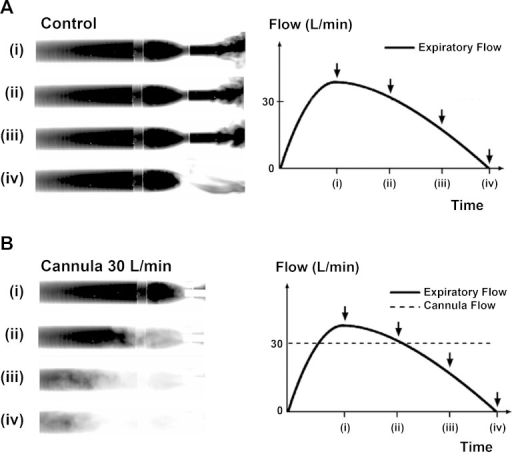 Infrared absorption images of expiratory flow through a tube model (TM) of upper airways demonstrate rebreathing from dead space. The images show four stages of filling of the model with exhaled CO2 at (i) peak expiratory flow, (ii) expiratory flow 30 l/min, (iii) expiratory flow 15 l/min, and (iv) end of expiration. A: control demonstrates filling of the TM during the expiration phase without NHF from a cannula. At the beginning of inspiration all gas from the TM will be rebreathed into the lungs. B: NHF from the cannula purges the expired CO2-rich gas from the model and replaces it with fresh air. This results in a reduction of CO2 rebreathing. Breathing through the model demonstrates that the replacement of expired gas with air starts before the end of expiration and that the static conditions used in the experiments led to an underestimation of the speed of dead-space clearance during respiration.