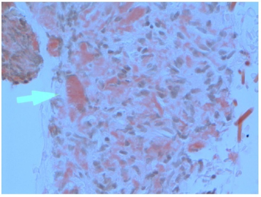 Amyloid tumour of the larynx. X 40—connective tissue partly covered by squamous mucosa. Within the connective tissue is eosinophilic material which stains positively with Congo red. This Congo red stained material shows apple green birefringence under polarised light. The appearances are consistent with amyloid.