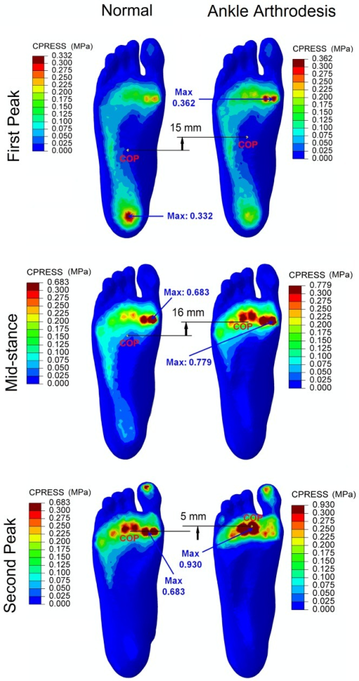 Comparison of the plantar pressure distribution between normal foot model and ankle arthrodesis foot model at the three instants.
