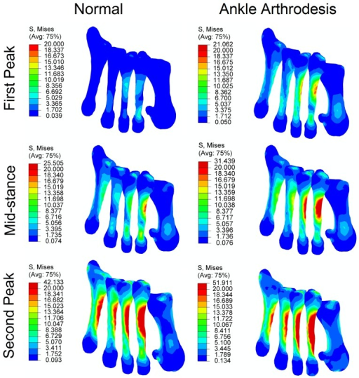 Comparison of von Mises stress in five metatarsal bones in normal foot model and ankle arthrodesis foot model at three instants.