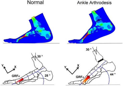 Angular positions of normal foot and ankle arthrodesis foot at second-peak instant in sagittal plane.