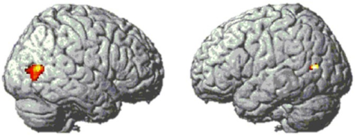Bilateral lateral occipital activation clusters from contrast [digits–words] in Experiment 1. MNI coordinates of peak voxels are [49 −71 9] and [−44 −67 14].
