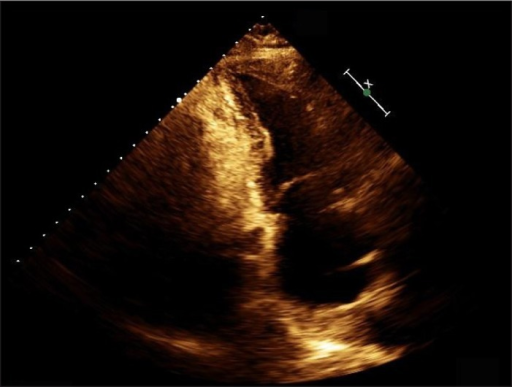 Transthoracic echocardiogram 3 weeks after discharge demonstrating normal LV ejection fraction with no wall motion abnormalities.