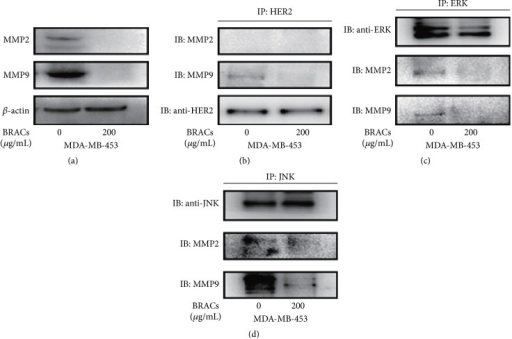 Effects of black rice anthocyanins (BRACs) extract on MMP2 and MMP9. (a) MDA-MB-453 cells were treated with BRACs (0 or 200 μg/mL) for 24 h. Cells were harvested for analysis of MMP2 and MMP9 expression using immunoblotting. Expression of β-actin served as a loading control. (b) MDA-MB-453 cells were treated with BRACs (0 or 200 μg/mL) for 24 h. Cell lysates were collected and immunoprecipitated with anti-HER2 antibody and then immunoblotted with antibodies against MMP2, MMP9, and HER2. (c) MDA-MB-453 cells were treated with BRACs (0 or 200 μg/mL) for 24 h. Cell lysates were collected and immunoprecipitated with an anti-ERK antibody and then immunoblotted with antibodies against MMP2, MMP9, and ERK. (d) MDA-MB-453 cells were treated with BRACs (0 or 200 μg/mL) for 24 h. Cell lysates were collected and immunoprecipitated with an anti-JNK antibody and then immunoblotted with antibodies against MMP2, MMP9, and JNK.