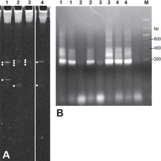 DGGE gel of DNA samples extracted from four (1-4) root dentine blocks (A) and agarose gel (B) showing PCR products derived from two selected DGGE gel bands from each sample (1-4). DNA bp markers (M) are indicated