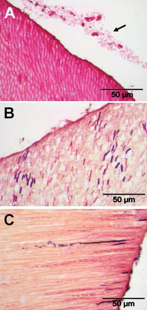 Transverse sections of human roots after 15 days incubation in situ in subject 3. Sections were prepared as described in Material and Methods, and stained by Brown & Brenn method. Panels: A, sample C, invasion by Gram-negative rod-shaped bacteria, with a strip of Gram-negative rods ~30 mm from the surface (arrowed); B, sample D, larger Gram-positive and Gram-negative rods (~5 mm length) well-separated but penetrating ≥150 mm; C, sample E, individual tubules appear to show long lines of invading Gram-positive and Gram-negative bacteria. TIF scores for specimens are shown in Figure 3