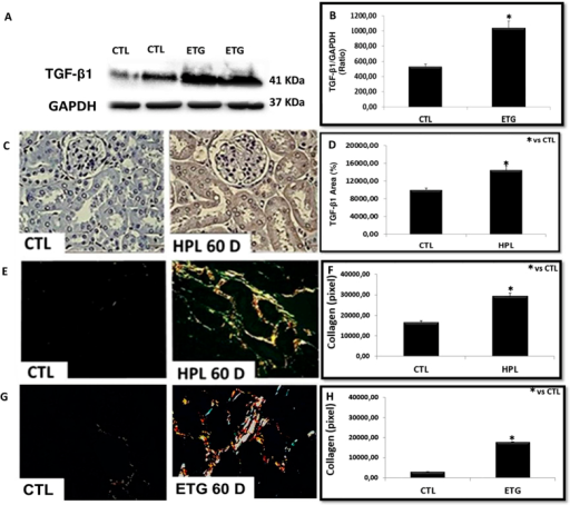 Hyperoxaluria increased the expression of renal fibrosis markers.The stimulation with ethylene glycol during 60 days (ETG 60 D) and hydroxyproline during 60 days (HPL 60 D) increased the expression of TGF-β1 according to immunoblot image (A) and percentage of immunostaining area (C). There was an increase in the production of collagen type I (yellow to red tone) and collagen type III (greenish tone), showed by picrosirius red staining (E and G). Densitometric quantification of western blot bands (B), immunohistochemistry positive area (D) and collagen staining by picrosirius red (F and H) using ImageJ software. There was a significant increase in TGF-β1 protein expression and collagen production in HPL and ETG treated animals in comparison to controls (CTL) animals. Data are presented as means ± standard errors. N = 5 for each group. (*) Indicates significant differences compared with the control group at p < 0.05.