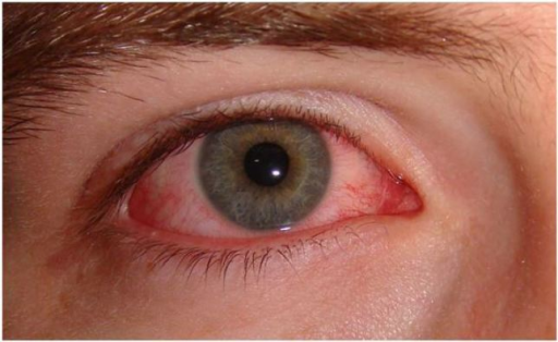 Acute viral conjunctivitis. Image courtesy of Wikimedia Creative Commons.