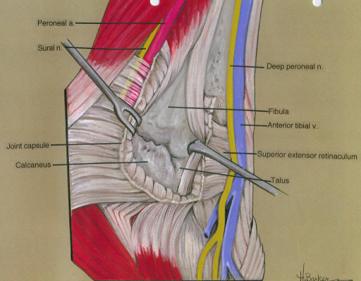 peroneal (fibular) artery; sural nerve; joint capsule; | Open-i