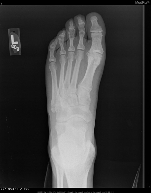 Multiple radiographic views of the left foot demonstrate a minimally displaced transverse fracture through the base of the fifth metatarsal with intra-articular extension to the most proximal aspect of the metatarsocuboid joint.  Soft tissue swelling is noted overlying the fracture site.  No other abnormalities are detected.