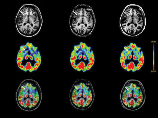 Brain imaging of the rejection process in patient 3 and its reversion under treatment.Magnetic resonance imaging and metabolic activity using 18F-deoxyglucose before surgery (T0), during the rejection process (T1) and after 6 months of reinstated immunosuppressive treatment (T2) are shown separately (upper and middle panel, respectively), then co-registered (lower panel). The white arrow indicates the right striatum. The false colour scale shows levels of metabolic activities from lowest (min) to highest (max).