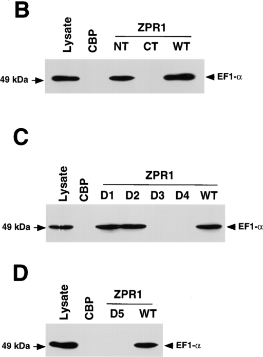 A small region of ZPR1 is required for interaction with  eEF-1α in the yeast S. cerevisiae. (A) Schematic representation of  S. cerevisiae ZPR1. NH2-terminal (NT; residues 1–261) and  COOH-terminal (CT; residues 262–486) fragments of cZPR1 are  illustrated. In-frame deletions within the full-length cZPR1 protein were constructed: D1 (residues 222–241), D2 (residues 222– 261), D3 (residues 202–241), D4 (residues 202–261), and D5 (residues 202–221). The sequence of the D5 region in mouse and  yeast ZPR1 proteins is illustrated. (B–D) Recombinant cZPR1  proteins were expressed as a CBP fusion protein in bacteria. The  CBP fusion proteins were purified, immobilized, and then used  for binding assays using cell lysates. Bound eEF-1α was detected  by protein immunoblot analysis. The binding of eEF-1α to NT  and CT fragments of cZPR1 was examined (B). The effect of in-frame deletions (D1, D2, D3, and D4) of cZPR1 was investigated  (C). The effect of the D5 in-frame deletion mutation of cZPR1  was also examined (D).