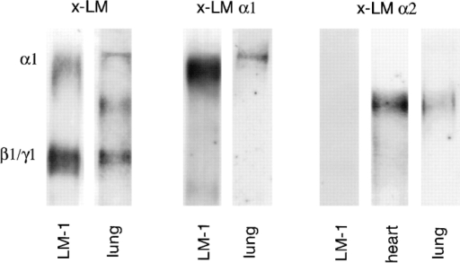 Immunoblots demonstrating the presence of LM α1,  α2, β1, and γ1 chains in the developing lung (day 15 of gestation).  A polyclonal antibody against EHS LM that recognizes α1, α2,  β1, and γ1 chains (x-LM), a monoclonal antibody to the LM α1  chain (AL-4, x-LM α1), and a monoclonal antibody to LM α2  chain (4H8-2, x-LM α2) were used in these studies. LM-1 from  the EHS tumor and embryonic heart (rich in LM-2) served as  controls. Immunoblots with normal rabbit IgG or rat IgG did not  detect any protein bands.