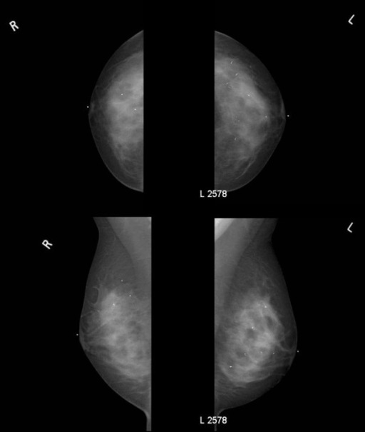 Bilateral digital mammography. Upper left panel is right cranial-caudal view. Upper right panel is left cranial-caudal view. Lower left panel is right medial-lateral-oblique view. Lower right panel is left medial-lateral-oblique view. Four individual microclips are visible within the right breast and eight individual microclips are visible within the left breast.