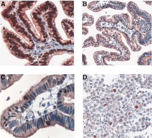 Survivin expression in choroid plexus tumours using the sc-10811 antisera: (A) papilloma grade I, (B) atypical papilloma grade I–II (low magnification), (C) atypical papilloma grade I–II (high magnification), and (D) choroid plexus carcinoma.