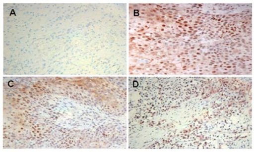 p-Stat3 was elevated in bladder cancer tissues. (A) normal tissue, (B) squamous cell carcinoma (Stage II), (C) urothelial carcinoma (stage III), (D) urothelial carcinoma (stage IV). Normal tissues appeared negative in p-Stat3 staining. The nuclei were counterstained with hematoxylin blue. Image magnification was 100×.