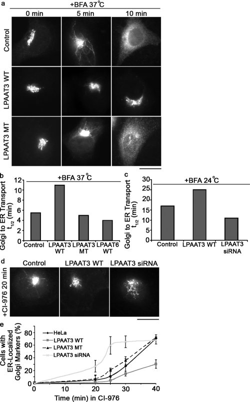 LPAAT3 overexpression slows BFA and CI-976–stimulated Golgi retrograde trafficking to the ER. (a) HeLa cells and cells transfected with LPAAT3 WT or LPAAT3 MT were treated with 10 µg/ml BFA and analyzed by immunofluorescence with GPP130 as a Golgi marker. Control cells, LPAAT3 MT cells, and LPAAT6 cells formed Golgi membrane tubules from 2 to 5 min after addition of BFA and were completely relocalized to ER membranes within 10 min, whereas LPAAT3 WT cells were slower. Bar = 20 µm. (b) The t1/2 of Golgi loss due to BFA tubulation was 5.5, 5.0, and 4.0 min for HeLa cells, LPAAT3 MT cells, and LPAAT6 cells, respectively, and 11 min for LPAAT3 WT cells. (c) To measure LPAAT3 knockdown cells treated with BFA, the experiment above was repeated at 24°C where the t1/2 values for cells was 18 min for control cells, 25 min for cells overexpressing LPAAT3 WT, and 11.2 min for LPAAT3 knockdown cells. Data are representative of three independent experiments. (d) Control cells, LPAAT3 WT cells, LPAAT3 MT cells, and LPAAT3 siRNA knockdown cells were treated with 50 µM of the LPAT inhibitor CI-976 for 30 min. Cells expressing LPAAT3 WT were slower at forming Golgi membrane tubules, whereas knockdown cells were considerably faster. Bar = 20 µm. (e) Quantification of the CI-976 results. All error bars are SD for three independent experiments (n = 300).
