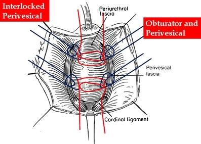 Diagram    of CRISP  cystocele    repair    using interlocking s   Openi