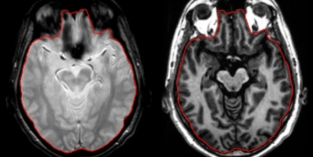 Intracranial cavity detection. The T2* sequence was used to detect the intracranial cavity contours (in red) as it clearly depicts external CSF (left). Given the lack of full brain coverage for all patients the 3DT1 sequence was automatically coregistered to T2*, resliced in the axial plane, and used to manually complete for potentially missing upper and lower slices (right)