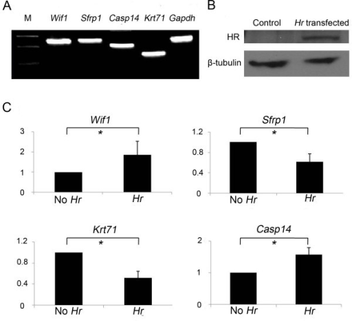 Changes in expression of Wif1, Sfrp1, Casp14, and Krt71 in Hr-transfected PAM212 cells. (A) Expression of Wif1, Sfrp1, Casp14, and Krt71in normal PAM212 cells using RT-PCR. M: size marker. (B) Western blot analysis showing the HR protein expressed in Hr-transfected PAM212 cells. β-tubulin indicates equal amount of protein loading. (C) Regulation of Wif1, Sfrp1, Casp14, and Krt71 gene expression by HR in Hr-transfected PAM212 cells by real-time PCR. The Y-axis indicates the fold difference in relative expression levels of each gene in HR-overexpressing cells compared with controls. *p value < 0.05. Results are the average of three independent experiments conducted in duplicate.
