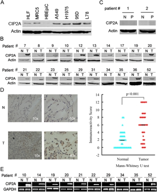 CIP2A is over-expressed in human lung cancer.(A): Western blot analysis of CIP2A in human lung cancer cells (A549, H1975, 95D and L78), embryonic lung fibroblast cells (HLF and MRC-5), and normal human bronchial epithelial cells (HBEpiC). (B): Western blot analyses of CIP2A protein in primary lung tumors (T) and adjacent normal lung tissues (N). β-Actin is used as a loading control. Representative results are shown and numbers are referred to individual patients. (C): Western blot analyses of CIP2A protein in inflammatory pseudotumor (P) and adjacent normal lung tissues (N). β-Actin is used as a loading control. (D): Representative images (left panel) and score (right panel) of immunohistochemistry staining for CIP2A expression in primary lung tumors (T) and adjacent normal lung tissues (N). (E): RT-PCR analyses of CIP2A mRNA in primary lung tumors (T) and adjacent normal lung tissues (N). GAPDH is employed as a loading control. Representative results are shown and numbers are referred to individual patients.