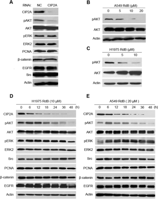 Downregulation of CIP2A leads to decrease of phosphorylated Akt in lung cancer cells.(A): A549 cells were transfected with NC or CIP2A-specific siRNA for 72 h, and the expression of indicated proteins were detected using Western blots. (B and C): A549 (B) and H1975 cells (C) were treated with rabdocoetsin B (RdB) at indicated concentrations for 48 and 24 h, respectively, and Western blots were performed to analyze the expression of proteins indicated. (D and E): H1975 (D) and A549 (E) cells were treated with rabdocoetsin B (RdB) for indicated time points, and Western blot analysis was carried out with antibodies specific for the indicated proteins. β-actin is used as a loading control.