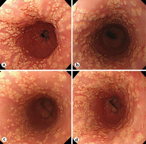 Endoscopic examination. a First endoscopic examination: More than 100 yellowish plaques measuring 1–20 mm in diameter were seen in the middle and lower thoracic esophagus. The lobulated flower-like lesions were scattered over the mucosal surface. b Endoscopic examination after 1 year: The lesions had decreased slightly in size or number compared with the first examination. c Endoscopic examination after 2 years: The lesions had decreased further in size or number compared with the first examination. d Endoscopic examination after 3 years: The lesions had increased in size or number again and were similar to the first examination.