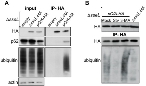 SseL interacts with p62 and autophagic substrates.(A and B) Co-immunoprecipitation from RAW264.7 macrophages infected with ΔsseL mutant bacteria expressing SseL-HA or SseLC/A-HA for 10 h. (A) Infectedcell lysates and immunoprecipated fractions were probed with anti-HA, anti-ubiquitin and anti-p62 antibodies. (B) At 7 h post-infection, infected cells were subjected to mock, 3-MA or starvation (Stv) treatments for 3 h before harvesting and processing as described in (A). Cell lysates and immunoprecipiations were probed with anti-HA and anti-ubiquitin antibodies.