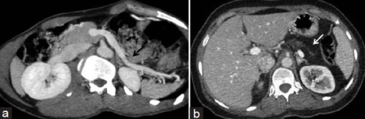 (a) Reformatted axial-oblique CT image of the same patient reveals that the stomach and bowel loops are occupying the pancreatic bed anterior to the splenic vein (black arrow) described as dependent stomach and dependent intestine signs. (b) Axial CT section in a different patient with chronic pancreatitis exhibits lipomatous replacement of pancreas (white arrow) with absent dependent stomach and dependent intestine signs