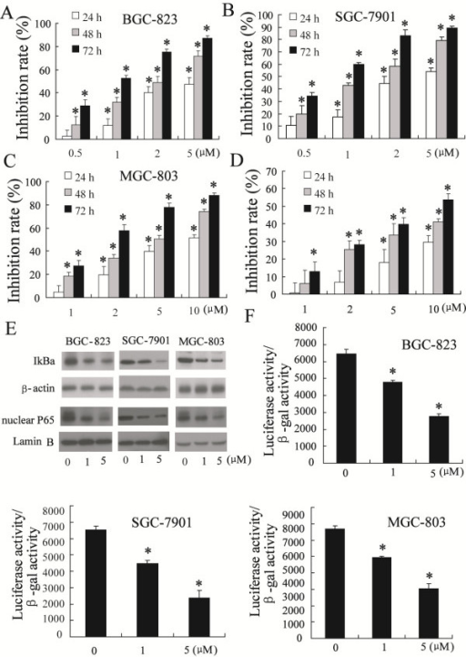 Celastrol repressed viability of gastric cancer cells and NF-κB signaling pathway. Exposure to various concentrations of celastrol resulted in dose- and time-dependent growth inhibition of BGC-823 cells (A), SGC-7901 cells (B), MGC-803 cells (C) and GES-1 cells (D). Celastrol inhibited phosphorylation of IκB and nuclear p65 content in dose-dependent manner (E). Celastrol decreased NF-κB transcriptional activity in BGC-823 cells, SGC-7901 cells and MGC-803 cells in a dose-dependent manner (F). *P < 0.05, indicate significant differences from the respective control groups.