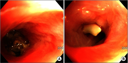 (A) Fiberoptic bronchoscopy reveals an irregular, mass-like, brownish material which totally obstructed the sub-segmental bronchus in superior segmental bronchus of the lower left lobe. (B) A foreign body was noted in other sub-segmental bronchus quite near the aspergilloma.