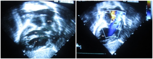 The echocardiography images of this case.MPA: main pulmonary artery, RV: right ventricular, VSD: ventricular septal defect, IVS: inter ventricular septum, LV: left ventricular, AO: aortic artery.
