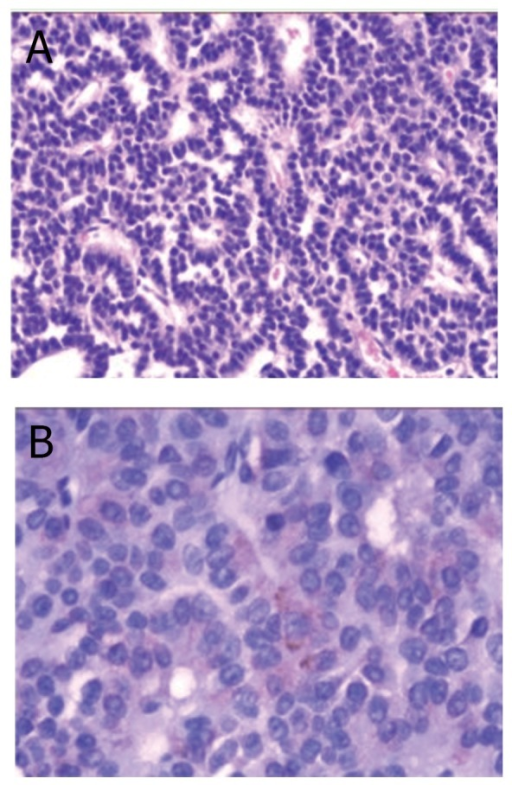 The histologic findings were compatible with pituitaryadenoma (A. HE×100). The focus of the tumor cells werepositive for β-FSH immunostaining (B. ×400).