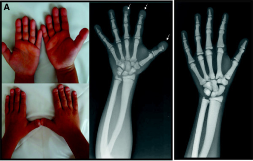 Panel A: Typical finding of acro-osteolytic distal phalanges on X-rays and wrinkled skin over the dorsa of distal fingers and flattened and grooved nails in pycnodysostosis detected in patient 4. Panel B: Osteosclerosis without acroosteolysis detected on radiograph of the patient #8.
