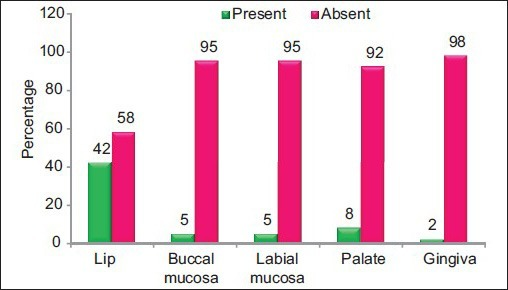 Percentage of presence and absence of oral depigmentation in lips, buccal mucosa, labial mucosa, palate and gingiva among the study group