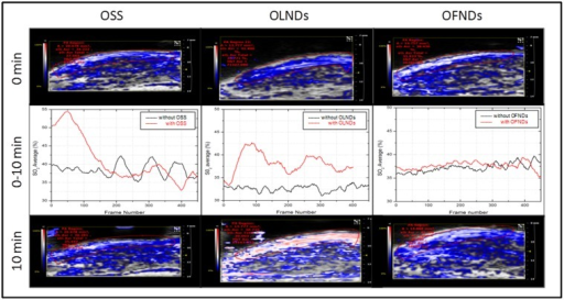 Topical treatment with OLND gel formulation effectively enhances oxy-Hb levels in vivo.The shaved hind limbs of nine anesthetized mice were monitored by photoacoustics for oxy-Hb and deoxy-Hb levels before (0 min, upper row), during (0–10 min, central row) and after (10 min, lower row) topical treatment with OSS (first column), OLND (second column) and OFND (third column) gel formulations. White/red pixels: oxy-Hb; blue pixels: deoxy-Hb. Data are shown as representative images from three independent experiments (three mice per experiment) with similar results.