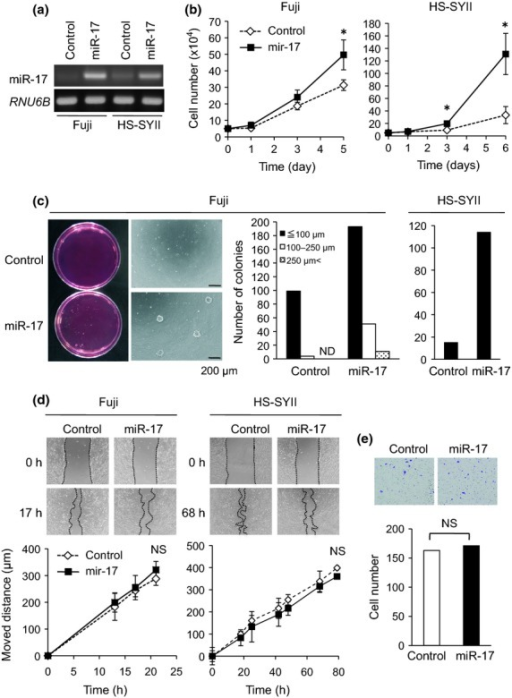 MiR-17 increases growth of synovial sarcoma cells. (a) Fuji and HS-SYII cells were infected with miR-17-producing or its control lentivirus, and the expression levels of miR-17 were examined by semi-quantitative RT-PCR. (b) Proliferation of Fuji and HS-SYII cells with or without MiR-17 overexpression was investigated. *P < 0.05 versus control cells. (c) Colony formation assay was performed in both Fuji and HS-SYII cells with or without miR-17 overexpression. The numbers and size were measured and graphed. ND means not detected. (d) Wound healing assay. Moved distances of Fuji and HS-SYII cells with or without miR-17 overexpression were measured at indicated time points. (e) Matrigel invasion assay. Invaded cells under the filter were counted and graphed.