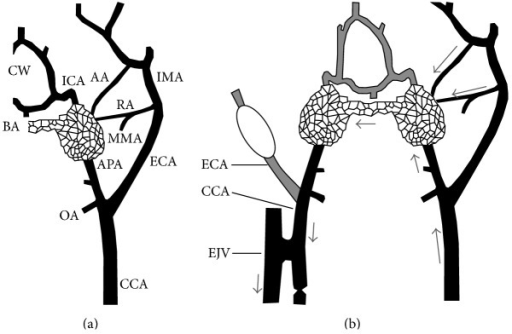 Anatomic basis and features of the swine AVM model. (a) Schematic representation of the normal left carotid arterial anatomy of the swine. The carotid rete mirabile is situated at the termination of the APA. ICA: internal carotid artery; ECA: external carotid artery; CCA: common carotid artery; IMA: internal maxillary artery; MMA: middle meningeal artery supplying the ramus anastomoticus; RA: ramus anastomoticus; AA: arteria anastomotica; APA: ascending pharyngeal artery; OA: occipital artery; BA: basilar artery; CW: circle of Willis; EJV: external jugular vein. (b) Schematic representation of the AVM model after creation of a right carotid-jugular fistula. Arrows indicate direction of flow, that is, from the left CCA to both retia mirabilia via the three feeding arteries (the left APA, RA, and AA), and retrograde down the right APA toward the right carotid-jugular fistula. Note balloon occlusion of the right ECA.