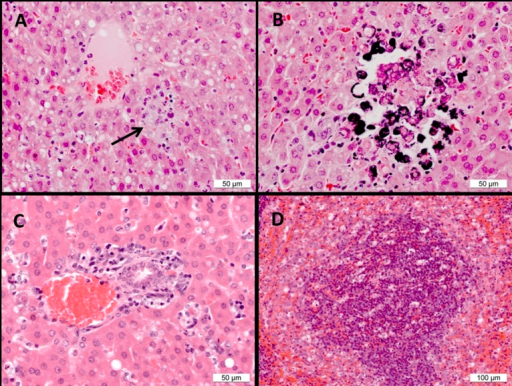 Histopathological observations in Ebola virus-challenge guinea pigs.(A) Liver, placebo animal 1. Hepatocyte vacuolation and a focus of necrosis (arrow). (B) Liver, placebo animal 1. Hepatocyte necrosis and mineralisation of necrotic cells. (C) Liver, MON-DNJ-treated animal 11. Necrosis and depletion of hepatocytes from around a portal triad. (D) Spleen, MON-DNJ-treated animal 10. Scattered necrotic/apoptotic cells and macrophage-like cells in the red pulp at the interface with the marginal zone.