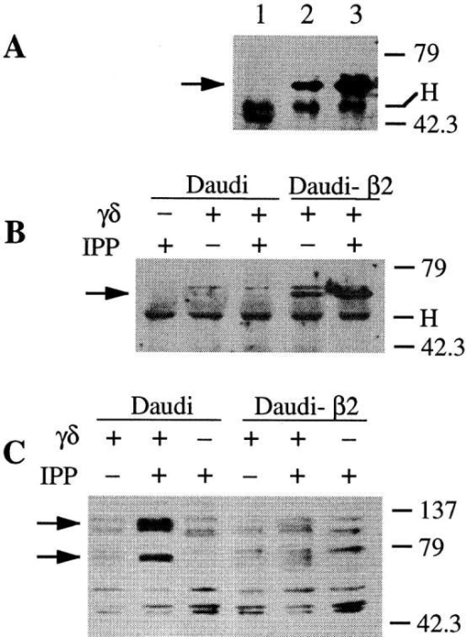 TCR-γ/δ stimulation with IPP in the presence  of HLA class I+ APC recruits  increased amounts of SHP-1  phosphatase to CD94 and to  TCR–CD3 complex and causes  tyrosine hypophosphorylation.  (A) Western blot performed with  anti–SHP-1 Abs after immunoprecipitations carried out with  anti-CD94 (lanes 2 and 3) or an  isotype-matched irrelevant mAb  (lane 1) from γ/δ T cells stimulated with IPP in the presence of  Daudi (lanes 1 and 2) or Daudi-β2 APCs (lane 3). (B) Anti–SHP-1  Western blot after immunoprecipitation with anti-CD3 ζ chain  mAbs. (C) Protein tyrosine phosphorylation of total cell lysates is visualized by immunoblotting with antiphosphotyrosine 4G10 mAb. Cells were lysed with 1% digitonin (A and  B) or with 1% NP-40 (C). Molecular mass markers are indicated on the  right in kilodaltons. Arrows indicate SHP-1 in A and B, and two hypophosphorylated proteins migrating at ∼70 and 130 kD in C. H, Ig heavy  chain of immunoprecipitating Abs.